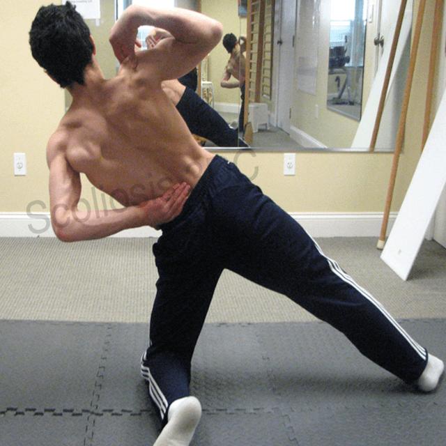 8. Schroth Scoliosis Technique