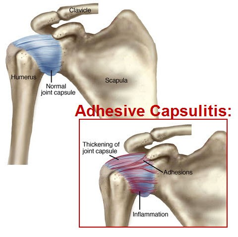 adhesive capsultis frozen shoulder